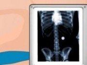 Rolul doctorului: Operatie la stomac
