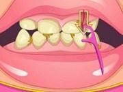 Tratamant de Albire a dintilor